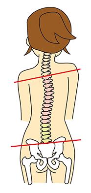 図:骨盤の歪み
